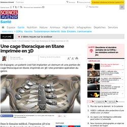 Une cage thoracique en titane imprimée en 3D