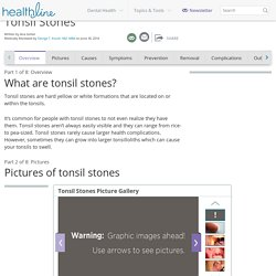 Tonsil Stones: Symptoms, Treatment & More