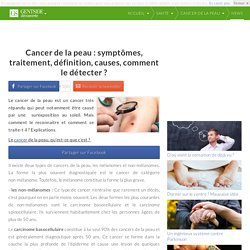Cancer de la peau : symptômes, traitement, définition, causes, comment le détecter ?