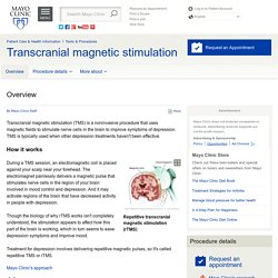 Transcranial magnetic stimulation Overview