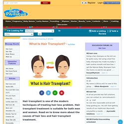 What is Hair Transplant? - Beauty and Grooming