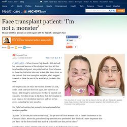 Face transplant patient: 'I'm not a monster' - Health - Health care - msnbc.com - (Build 20100722150226)