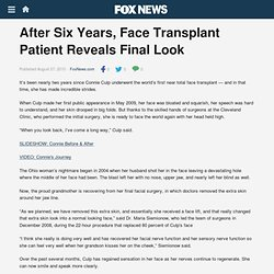 After Six Years, Face Transplant Patient Reveals Final Look - Incredible Health - FOXNews.com - (Build 20100722150226)