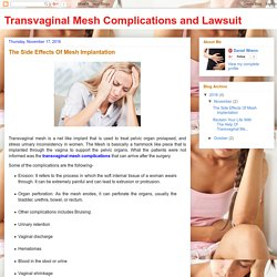 Transvaginal Mesh Complications and Lawsuit: The Side Effects Of Mesh Implantation