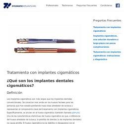 Los mejores implantes dentales cigomáticos en línea
