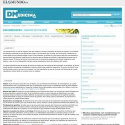 Cáncer de pulmón tratamientos, síntomas e información en Dmedicina