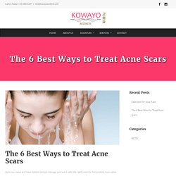 The 6 Best Ways to Treat Acne Scars