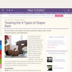 Treating Diaper Rash - Baby Diapering Essentials