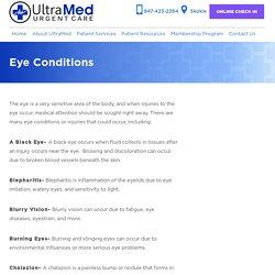 Eye Treatment in Skokie, IL