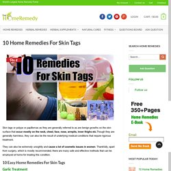 Home Remedies For Skin Tags - Natural Treatments & Cure For Skin Tags