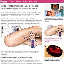 Estos son los síntomas de una trombosis venosa en tus piernas, mantente alerta. - balconsaludable.com