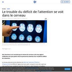 Le trouble du déficit de l'attention se voit dans le cerveau