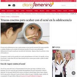 Trucos caseros para acabar con el acné en la adolescencia - Adolescentes