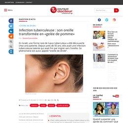 """Infection tuberculeuse : son oreille transformée en """"gelée de pomme"""""""