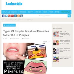 Types Of Pimples & Natural Remedies to Get Rid Of Pimples