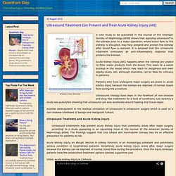 Ultrasound Treatment Can Prevent and Treat Acute Kidney Injury (AKI)