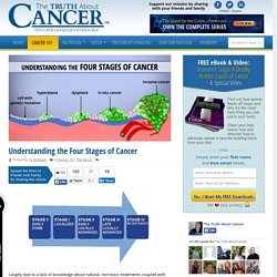 Understanding the Four Stages of Cancer