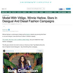 Model With Vitiligo, Winnie Harlow, Stars In Desigual And Diesel Fashion Campaigns
