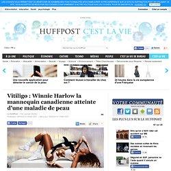 Vitiligo : Winnie Harlow la mannequin canadienne atteinte d'une maladie de peau