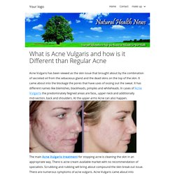 What is Acne Vulgaris and how is it Different than Regular Acne
