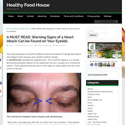 A MUST READ: Warning Signs of a Heart Attack Can be Found on Your Eyelids