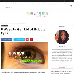 6 Ways to Get Rid of Bubble Eyes
