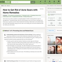 6 Ways to Get Rid of Acne Scars with Home Remedies