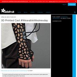 3D Printed Cast #WearableWednesday
