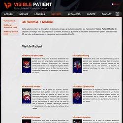 Visible Patient
