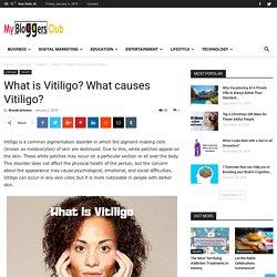 What is Vitiligo? What causes Vitiligo?
