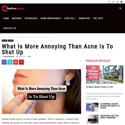What Is More Annoying Than Acne Is To Shut Up