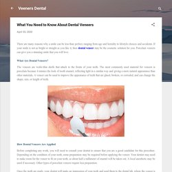What You Need to Know About Dental Veneers