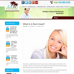 What is a Root Canal? - LA Dental Clinic