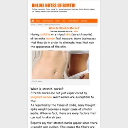 Preventing Stretch Mark