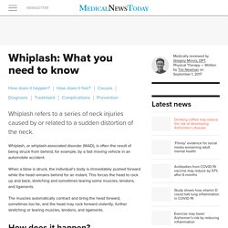 Whiplash: What you need to know
