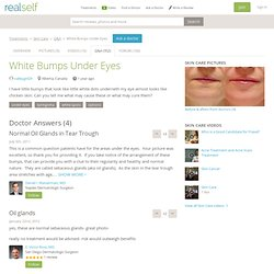 White Bumps Under Eyes Doctor Answers, Tips