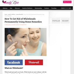 How To Get Rid of Whiteheads Permanently Using Home Remedies