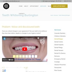 Professional Teeth Whitening - A Great Choice for Perfect White Teeth