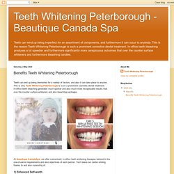 Teeth Whitening Peterborough - Beautique Canada Spa: Benefits Teeth Whitening Peterborough