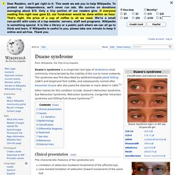 Duane syndrome