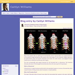 Happy Farm: Caitlyn Williams: Discectomy: Detailed procedure of Spine Surgery