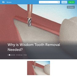 Why is Wisdom Tooth Removal Needed?