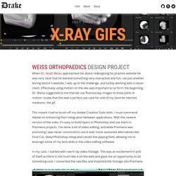 X-Ray Gifs