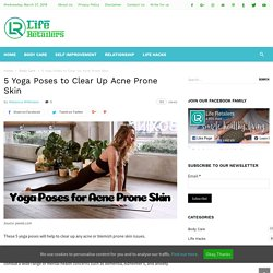 Yoga for Blemishes - Top 5 Yoga Poses for Acne Prone Skin