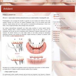 All-on-4 - najnovejša metoda zobozdravstva za nadomestitev manjkajočih zob