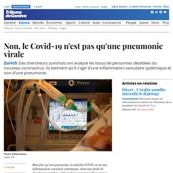 Non, le Covid-19 n'est pas qu'une pneumonie virale