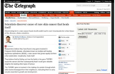 http://www.telegraph.co.uk/health/healthnews/8350381/Scientists-discover-cause-of-rare-skin-cancer-that-heals-itself.html