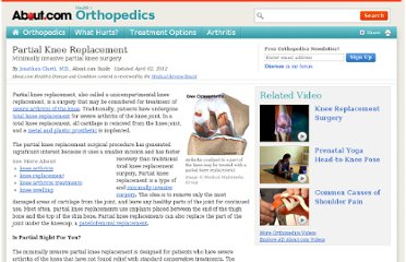 http://orthopedics.about.com/cs/kneereplacement/a/kneeuni.htm