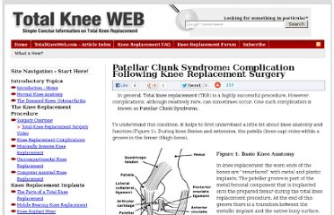 http://www.totalkneeweb.com/patellar-clunk-syndrome-complication-following-knee-replacement-surgery