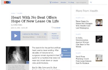 http://www.npr.org/2011/06/13/137029208/heart-with-no-beat-offers-hope-of-new-lease-on-life